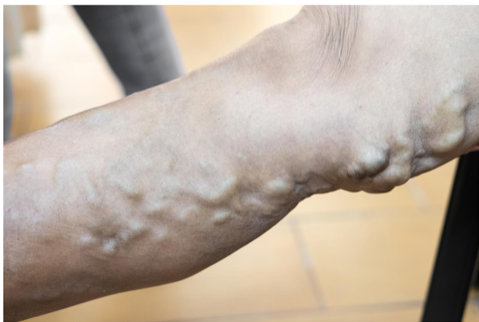 Why are veins more of a problem in hot weather?  Why are they more swollen?